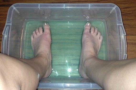 การรักษาส้นเท้าแตก