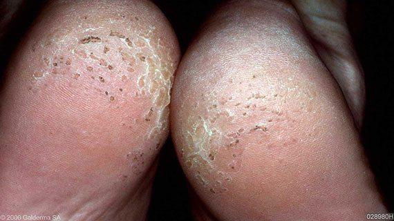 โรคเท้าเหม็น