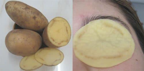 ถุงใต้ตาเกิดจาก