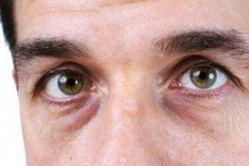 ถุงใต้ตา
