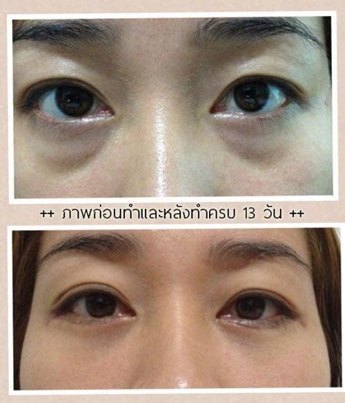 ศัลยกรรมถุงใต้ตา