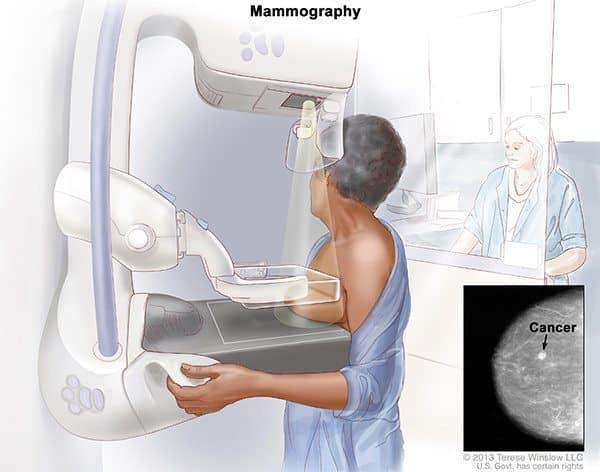 การตรวจมะเร็งเต้านม