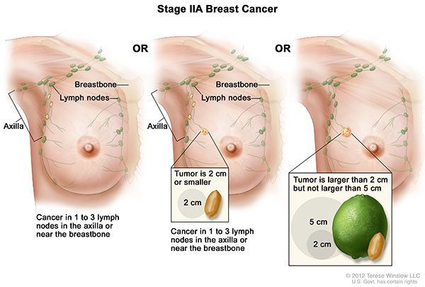 มะเร็งเต้านมระยะที่2