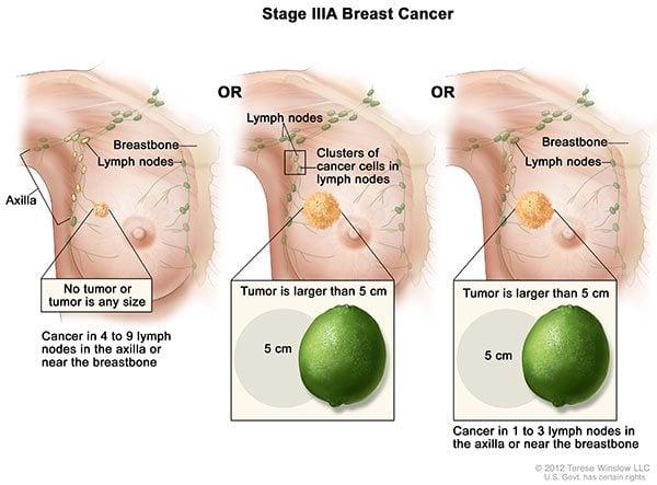 มะเร็งเต้านมระยะที่3