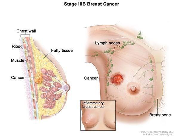ระยะมะเร็งเต้านม