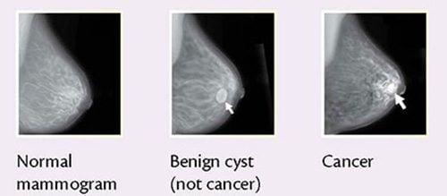 ลักษณะมะเร็งเต้านม