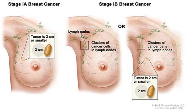 อาการเริ่มต้นมะเร็งเต้านม