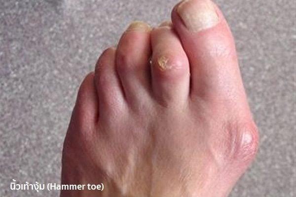 เท้าเป็นตาปลา
