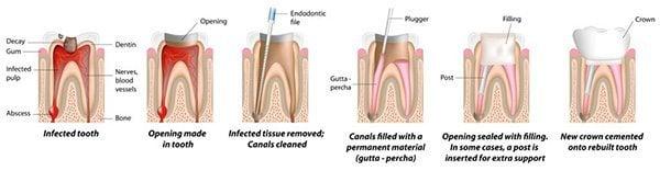 การรักษาฟันผุ