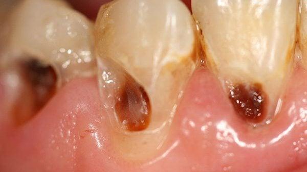 ฟันผุเกิดจาก