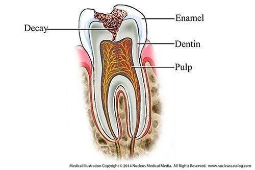 โรคฟันผุ