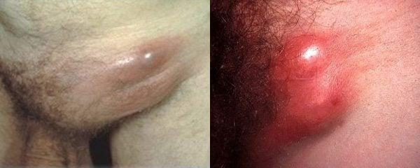 รูปภาพโรคฝีมะม่วง