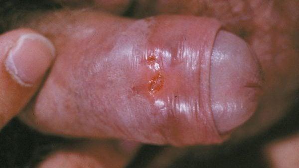 อาการโรคฝีมะม่วง