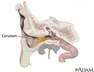 ขี้หูอุดตันอาการ