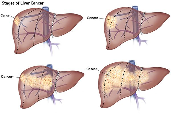 มะเร็งตับมีกี่ระยะ