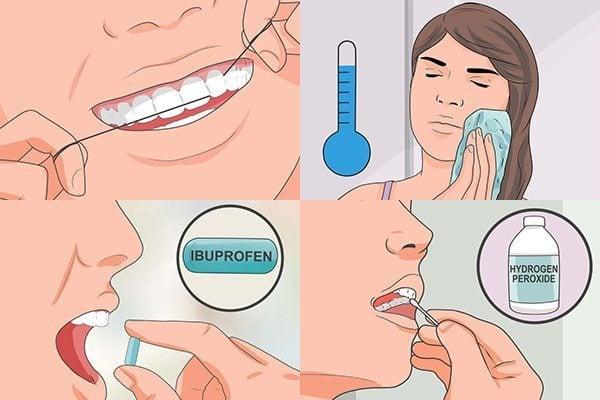 ยาแก้ปวดฟัน