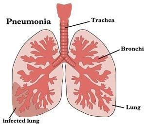 pneumonia คือ