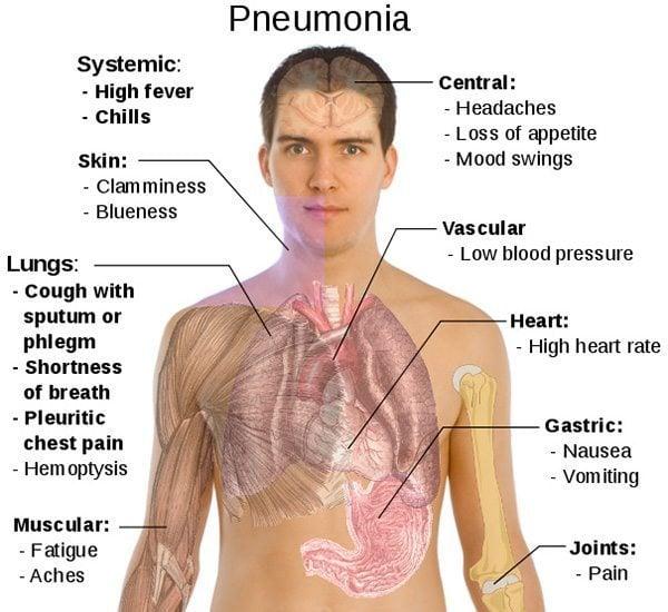 pneumonia พยาธิสภาพ