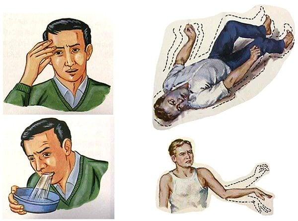 อาการเนื้องอกในสมอง