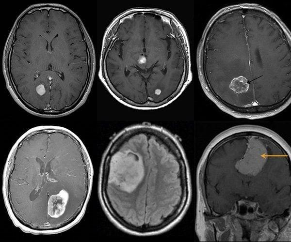 เนื้องอกในสมองอาการ