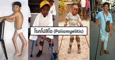ผลการค้นหารูปภาพสำหรับ โรคโปลิโอในเด็ก