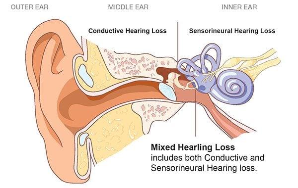การสูญเสียการได้ยิน