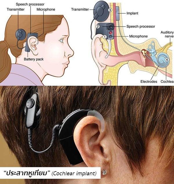 ประสาทหูเทียม