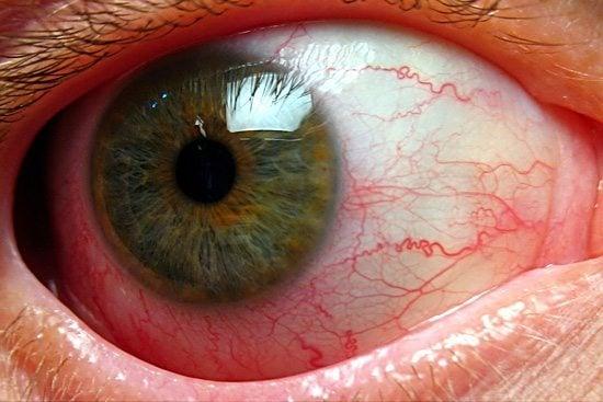ม่านตาอักเสบอาการ