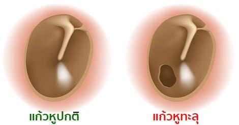 Image result for แก้วหูทะลุ