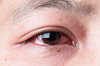 โรคม่านตาอักเสบ