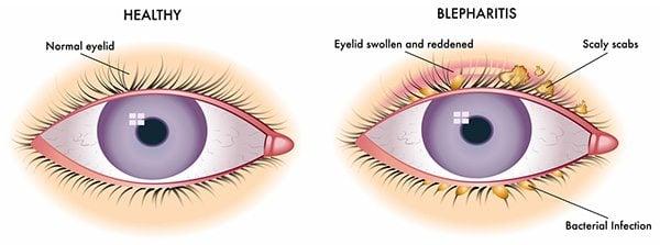 โรคเปลือกตาอักเสบ