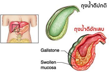 cholecystitis คือ