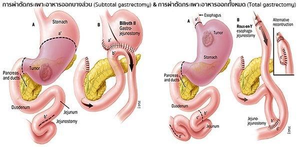 การผ่าตัดมะเร็งกระเพาะอาหาร