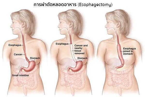 การผ่าตัดมะเร็งหลอดอาหาร