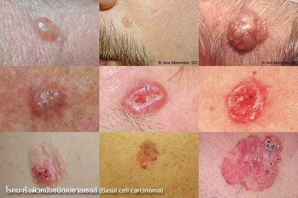 มะเร็งผิวหนังชนิดเบซาลเซลล์