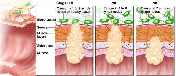 มะเร็งลำไส้ใหญ่ระยะที่3