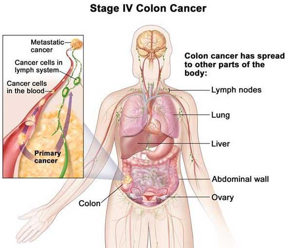 มะเร็งลำไส้ใหญ่ระยะสุดท้าย