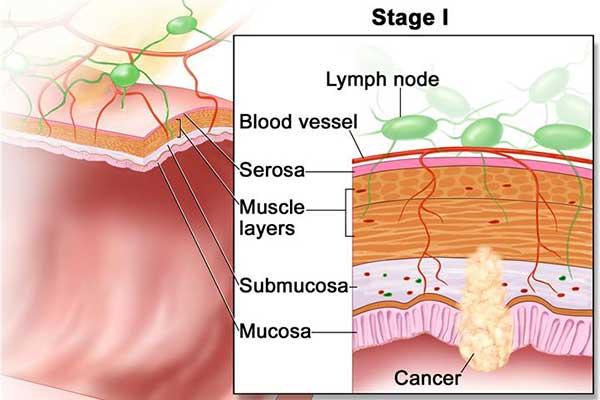 มะเร็งลำไส้ใหญ่ระยะแรก