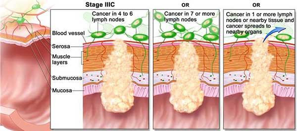 มะเร็งลำไส้ใหญ่ระยะ3