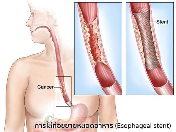 วิธีรักษามะเร็งหลอดอาหาร