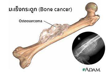 โรคมะเร็งกระดูก