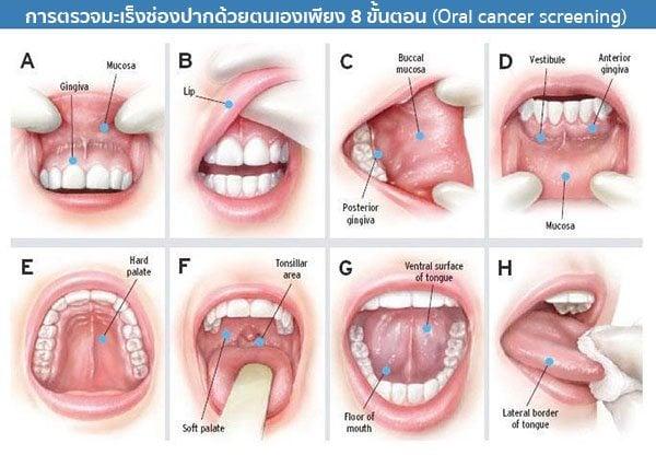 การตรวจมะเร็งช่องปาก