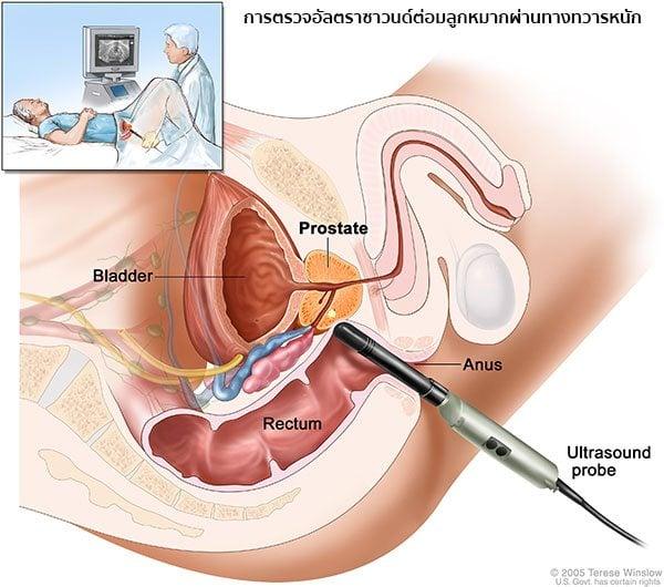 การตรวจมะเร็งต่อมลูกหมาก