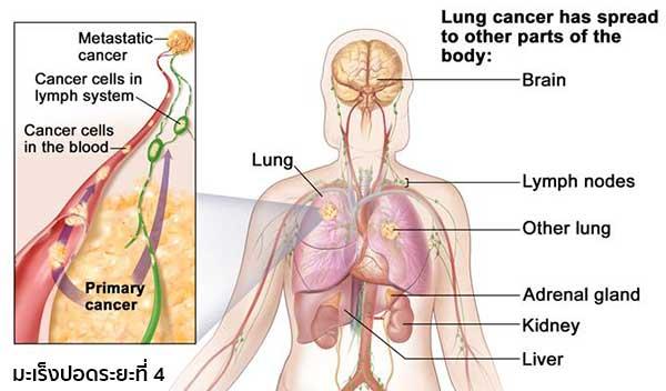 มะเร็งปอดระยะสุดท้าย