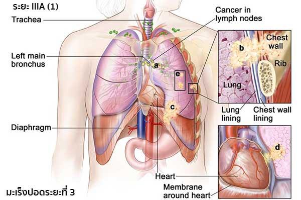 มะเร็งปอดระยะ3