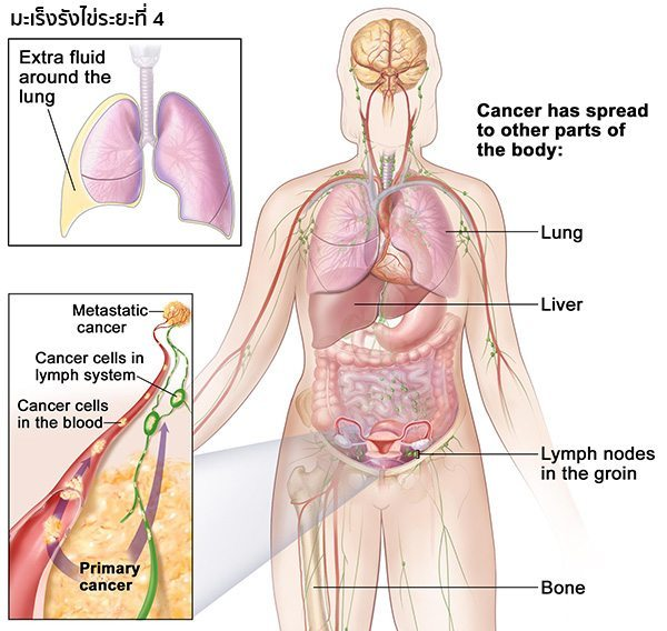 มะเร็งรังไข่ระยะสุดท้าย