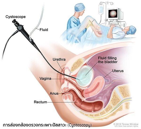 การตรวจมะเร็งกระเพาะปัสสาวะ