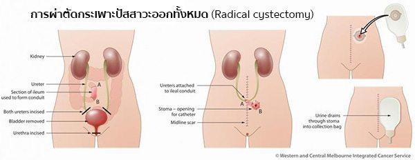 การรักษามะเร็งกระเพาะปัสสาวะ