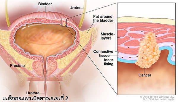 มะเร็งกระเพาะปัสสาวะระยะที่ 2