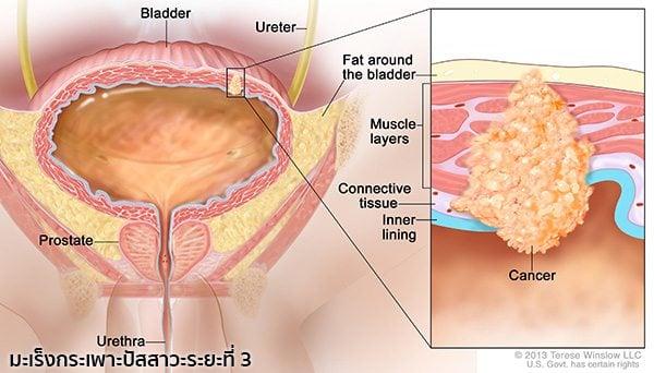 มะเร็งกระเพาะปัสสาวะระยะที่ 3